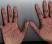 X on palm meaning